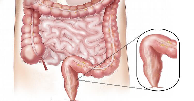Colon Rectal Diseases Diagnosis And Treatment Dr Nikhil Agrawal