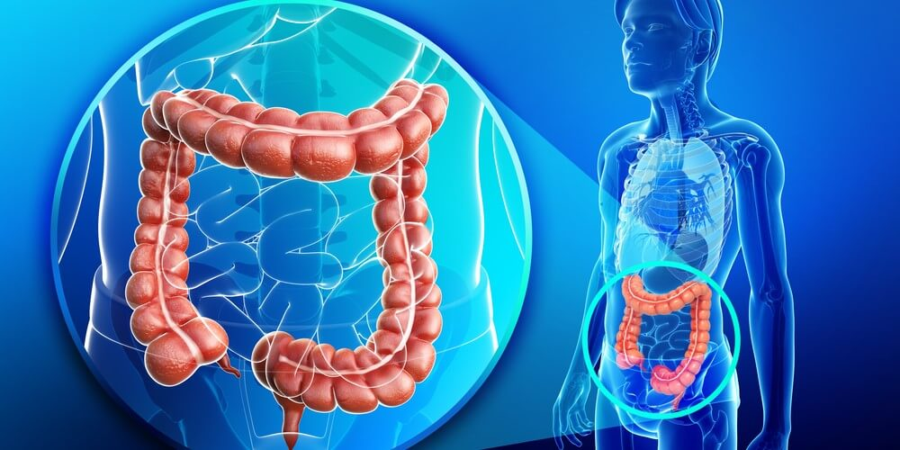 Colon Cancer Symptoms Causes Treatment Dr Nikhil Agrawal