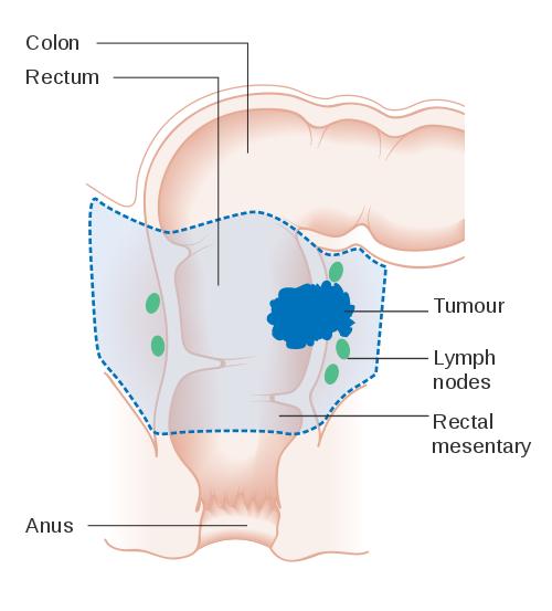 Rectal Cancer Symptoms Causes Treatment Dr Nikhil Agrawal